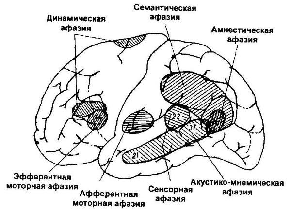 Виды афазии