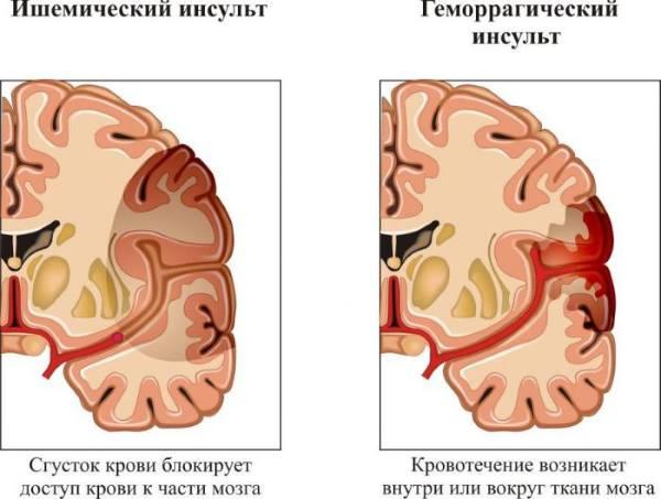 Восстановление речи после инсульта логопед